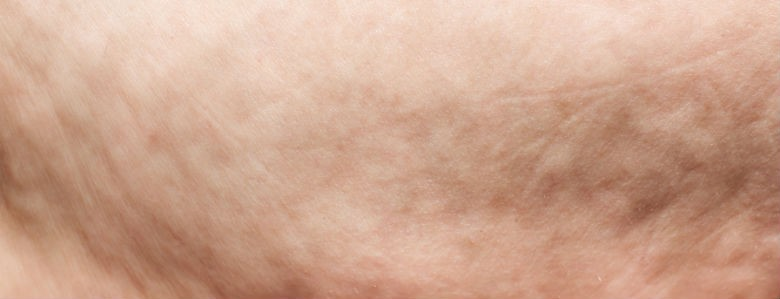 Will Losing Weight Reduce My Cellulite?